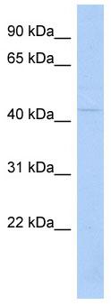 Western blot - TSPYL6 antibody (ab89956)
