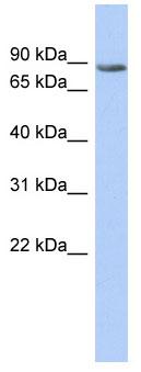Western blot - TMTC1 antibody (ab89957)