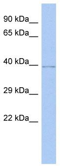 Western blot - WDR53 antibody (ab89958)