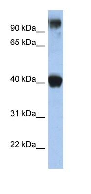 Western blot - TFAP2E antibody (ab89965)
