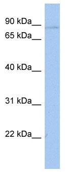 Western blot - ATXN7L2 antibody (ab89970)