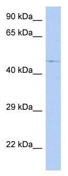 Western blot - FAM154A antibody (ab89972)