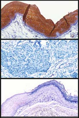 Immunohistochemistry (Formalin/PFA-fixed paraffin-embedded sections) - Cytokeratin 4 antibody [6B10] (ab9004)