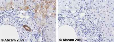 Immunohistochemistry (Formalin/PFA-fixed paraffin-embedded sections) - Cytokeratin 8 antibody [M20] (ab9023)