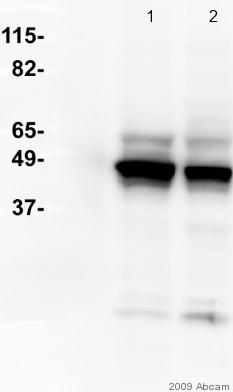 Western blot - Cytokeratin 8 antibody [M20] (ab9023)