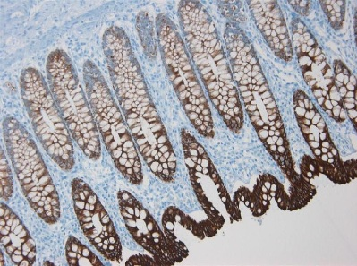 Immunohistochemistry (Formalin/PFA-fixed paraffin-embedded sections) - Anti-Cytokeratin 8 antibody [M20] (ab9023)