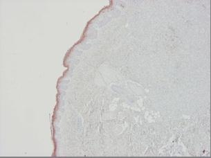 Immunohistochemistry (Formalin/PFA-fixed paraffin-embedded sections) - Anti-Cytokeratin 10 antibody [RKSE60] (ab9025)