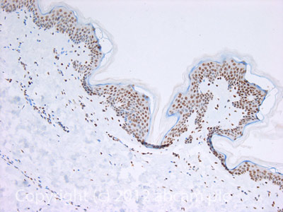 Immunohistochemistry (Formalin/PFA-fixed paraffin-embedded sections) - Anti-Histone H4 (tri methyl K20) antibody - ChIP Grade (ab9053)