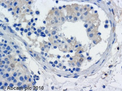 Immunohistochemistry (Formalin/PFA-fixed paraffin-embedded sections) - Kinesin Heavy Chain antibody [KN-01] (ab9097)