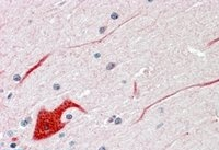 Immunohistochemistry (Formalin/PFA-fixed paraffin-embedded sections) - Anti-SHP2 antibody (ab9214)