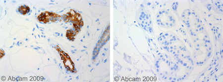 Immunohistochemistry (Formalin/PFA-fixed paraffin-embedded sections) - Anti-Cytokeratin 19 antibody [RCK108] (ab9221)