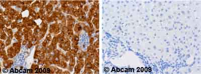 Immunohistochemistry (Formalin/PFA-fixed paraffin-embedded sections)-alpha 1 Antitrypsin antibody [B9](ab9399)