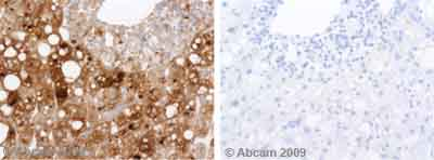Immunohistochemistry (Formalin/PFA-fixed paraffin-embedded sections)-Transferrin antibody(ab9538)