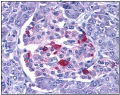 Immunohistochemistry (Formalin/PFA-fixed paraffin-embedded sections) - Endo G antibody (ab9647)