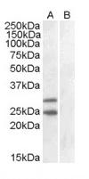 Western blot - Anti-SOCS1  antibody (ab9870)