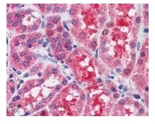 Immunohistochemistry (Formalin/PFA-fixed paraffin-embedded sections) - Anti-SOCS1  antibody (ab9870)