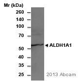 Western blot - Anti-ALDH1A1 antibody (ab9883)