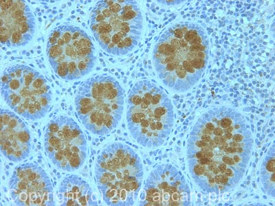 Immunohistochemistry (Formalin/PFA-fixed paraffin-embedded sections) - MUC2 antibody (ab90007)