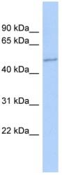 Western blot - ZNF187 antibody (ab90024)