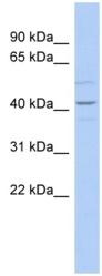 Western blot - Anti-Wnt2  antibody (ab90025)