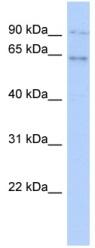 Western blot - ZNF319 antibody (ab90026)