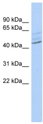 Western blot - ZMYND12 antibody (ab90027)