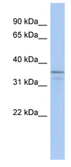 Western blot - UBLCP1 antibody (ab90034)
