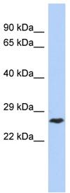 Western blot - DIRAS1 antibody (ab90036)