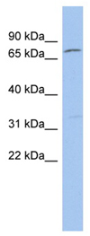 Western blot - ZFP90 antibody (ab90037)