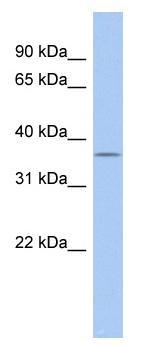 Western blot - FAM76A antibody (ab90042)
