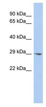 Western blot - ECHDC2 antibody (ab90044)