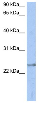 Western blot - ATP6V1E2 antibody (ab90057)