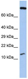 Western blot - FLJ37543 antibody (ab90063)
