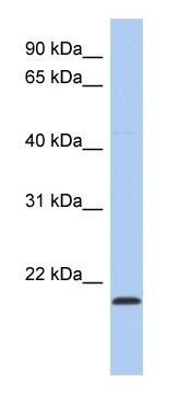 Western blot - RWDD4A antibody (ab90065)