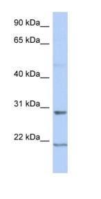 Western blot - C12orf53 antibody (ab90067)