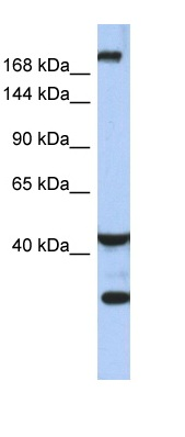 Western blot - Dispatched antibody (ab90068)