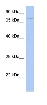 Western blot - HEXDC antibody (ab90069)