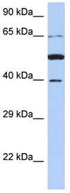 Western blot - PNMA3 antibody (ab90071)