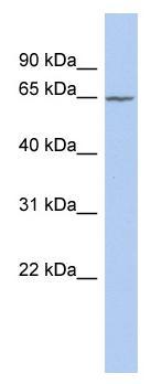 Western blot - SLC25A12 antibody (ab90095)