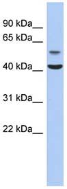 Western blot - OLFML1 antibody (ab90122)