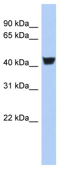 Western blot - Tyrosine Hydroxylase antibody (ab90130)