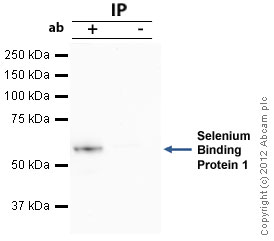 Immunoprecipitation - Anti-Selenium Binding Protein 1 antibody (ab90135)
