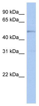 Western blot - carabin antibody (ab90153)