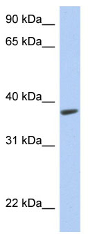 Western blot - RTDR1 antibody (ab90160)
