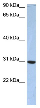 Western blot - C16orf65 antibody (ab90161)