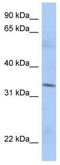 Western blot - MRPL15 antibody (ab90167)