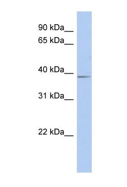 Western blot - SLC25A28 antibody (ab90170)