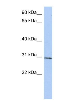 Western blot - C14orf172 antibody (ab90172)