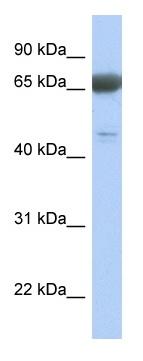 Western blot - PNMA3 antibody (ab90174)