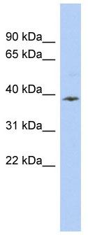Western blot - APOL6 antibody (ab90261)